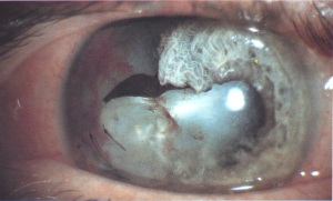 Trauma cataract